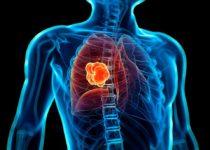 El riesgo de cáncer de pulmón aumenta con la expresión de genes específicos