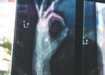 Las fracturas óseas curan más rápido con medicación