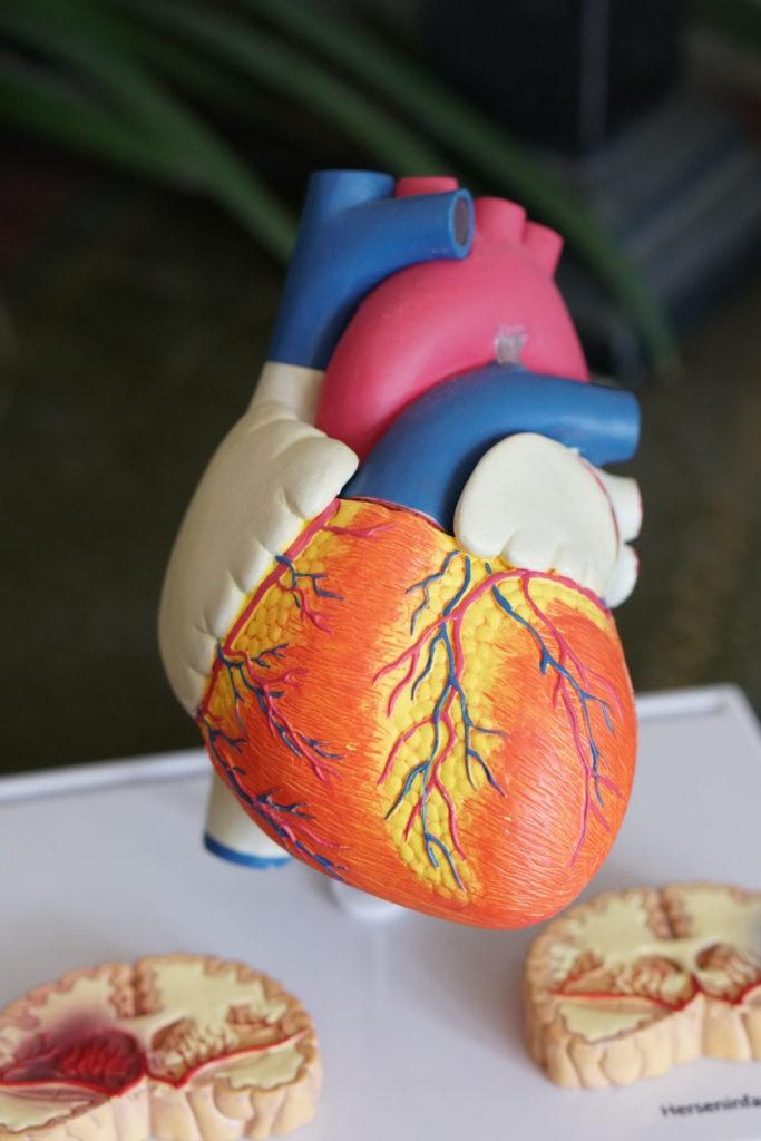 Niveles elevados de calcio en las coronarias predicen eventos cardíacos graves